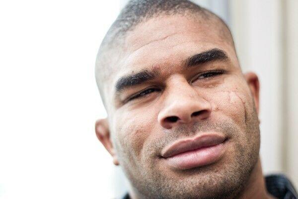 """唇 アリスター 「口が爆発した」「歯が剥き出しに…」オーフレイムの""""唇パックリKO写真""""に海外メディアも愕然【UFC】"""